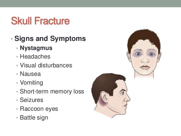 Temporary Memory Loss dysreflexia Headache,ringing ears tingling scalp Vagal Neuropathy 1