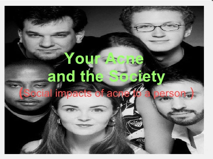 Your Acne  and the Society ( Social impacts of acne to a person  )