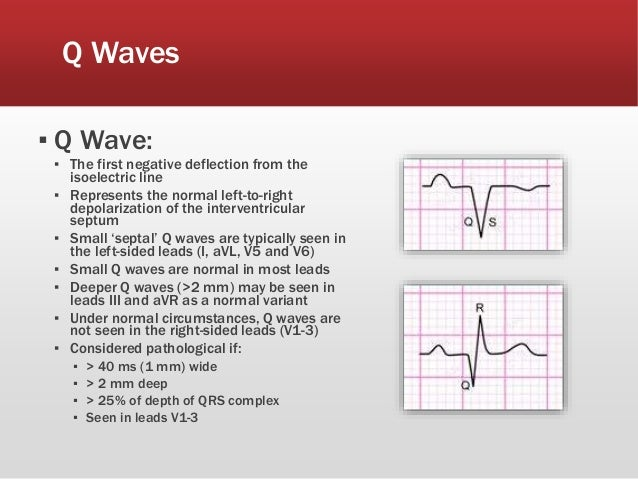 Waves Related Keywords & Suggestions - Insignificant Q Waves ...