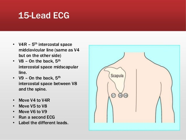 18 Lead Ecg Pictures to Pin on Pinterest PinsDaddy