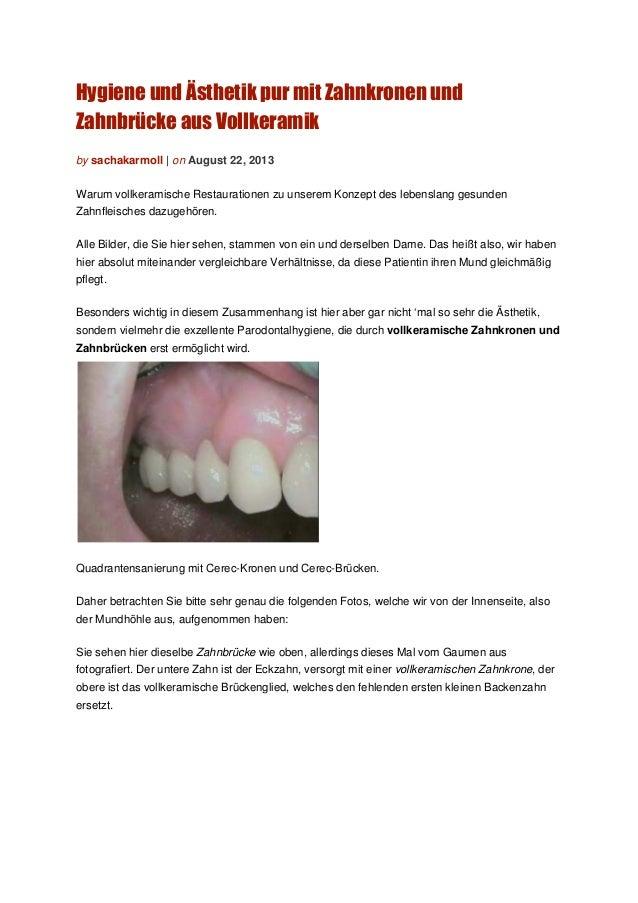 Hygiene und Ästhetik pur mit Zahnkronen und Zahnbrücke aus Vollkeramik by sachakarmoll | on August 22, 2013 Warum vollkera...