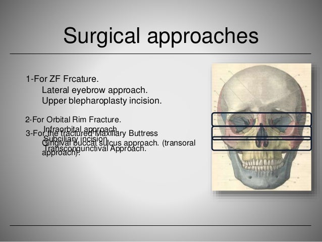 Rim Fracture Orbital Rim Fracture