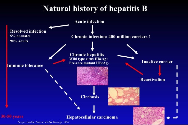 an analysis of hepatitis b Full-text paper (pdf): analysis of hepatitis b virus intrahepatic covalently closed circular dna and serum viral markers in treatment-naive patients with acute and chronic hbv infection.