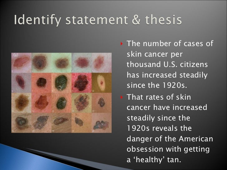 Thesis statement for skin cancer