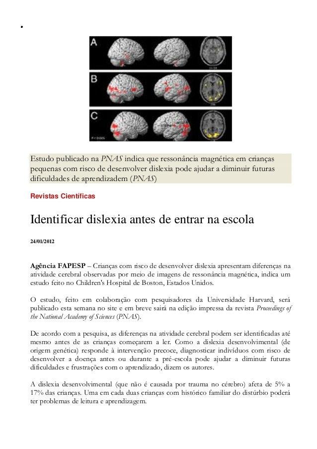 Estudo publicado na PNAS indica que ressonância magnética em crianças pequenas com risco de desenvolver dislexia pode ajud...