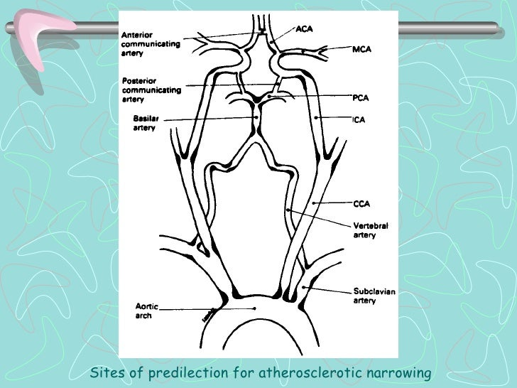 INFARTO CEREBRAL03. INFARTO CARDIOEMBOLICO- Tamaño medio (1.5-3 cm) o grande (>3 cm),- Habitualmente cortical,- Inicio fre...
