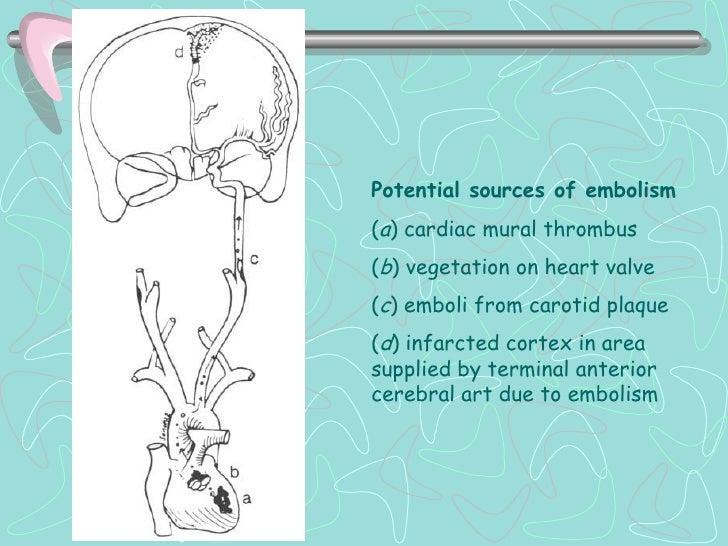 CLINICAISQUEMIA EN LA CIRCULACION ANTERIOR ARTERIA CEREBRAL ANTERIOR. Hemiparesia contralateral (pierna > brazo, cara). Dé...