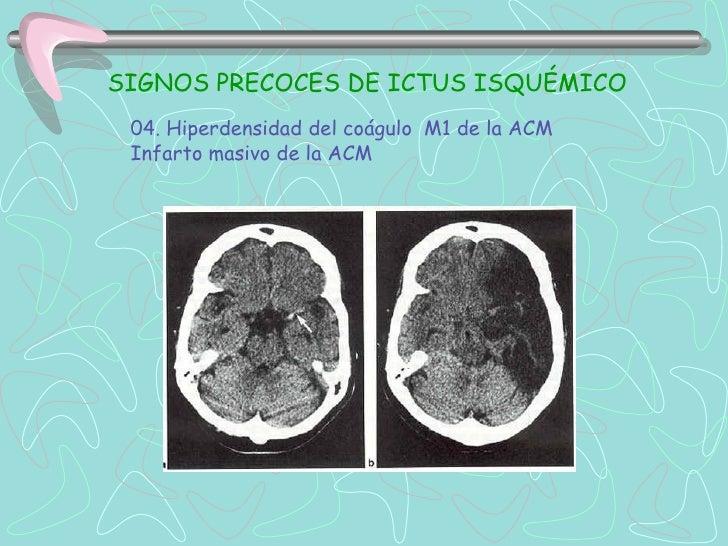 DIAGNÓSTICORESONANCIA MAGNETICA•Útil en Ictus Isquémico Agudo, menor de 6h, con mejor sensibilidadque TC•RMN secuencia de ...