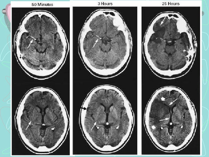 PENUMBRA ISQUEMICACore and penumbra in acute stroke imaging.The infarct core, presumptively identified by an abnormality i...