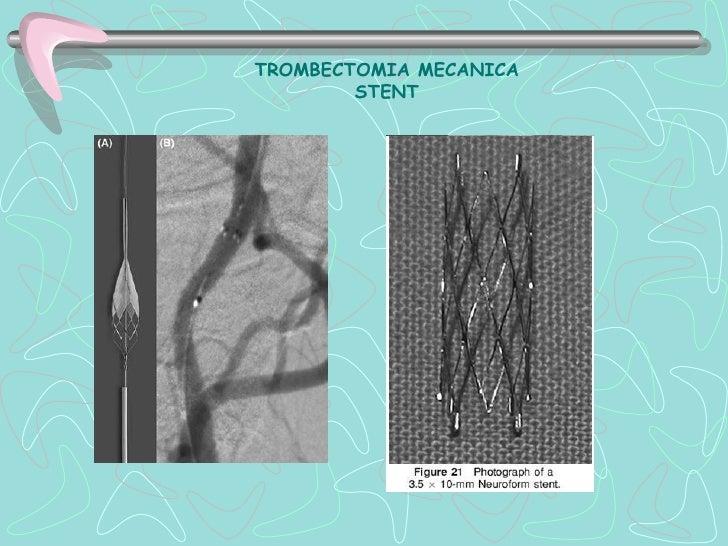 ENFERMEDAD CEREBROVASCULAR HEMORRAGICA    Localización de Hemorragia Cerebral       Supratentorial            85         ...