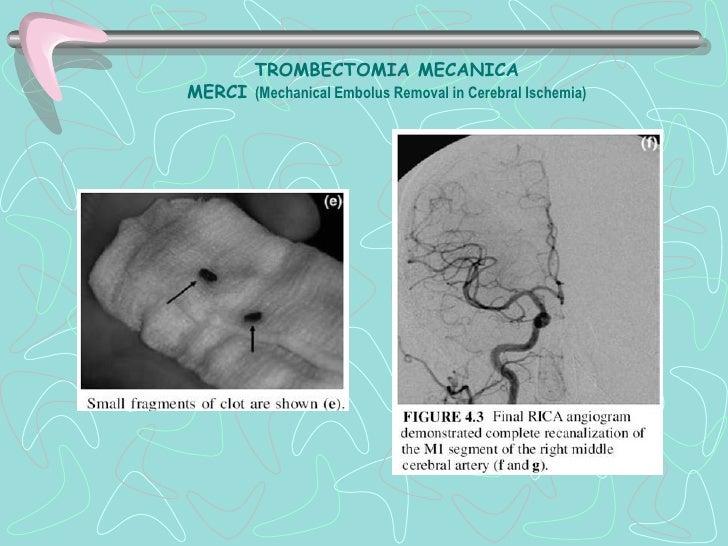 Hemorragia Parenquimal. Putamen