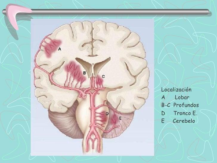 Hemorragia Cerebelo