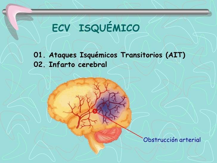 ECV ISQUÉMICO01. Ataques Isquémicos Transitorios (AIT)02. Infarto cerebral                             Obstrucción arterial