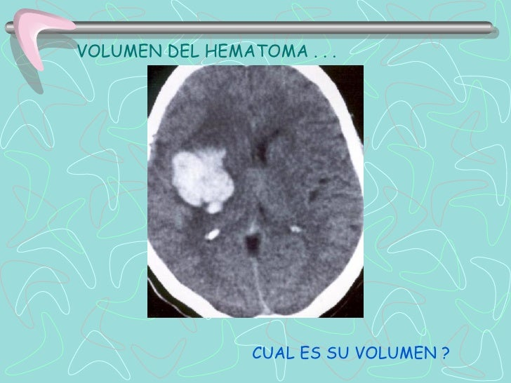 Most common sites of intracranial   aneurysms   (1) anterior communicating artery (ACA)               30%   (2) posterior ...