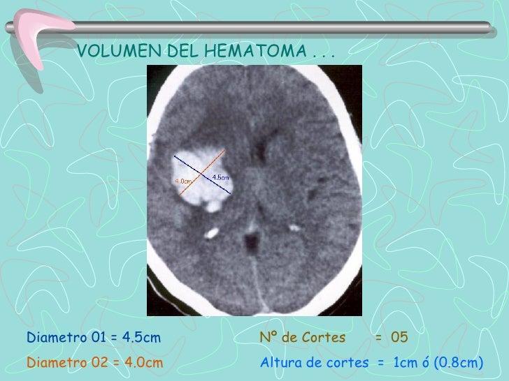 ,    Hemorragia subaracnoidea