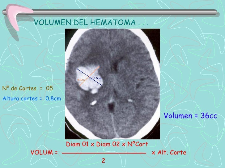 Punción Lumbar Hemorrágica
