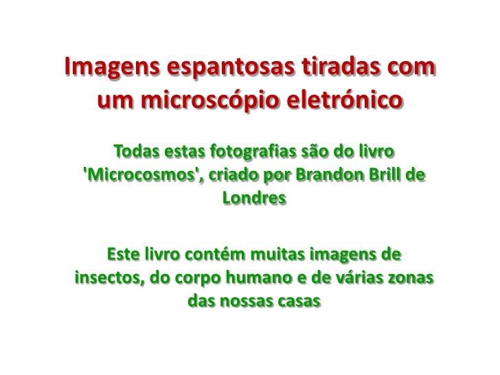 Imagens espantosas tiradas com um microscópio eletrónico<br />Todas estas fotografias são do livro 'Microcosmos', criado p...