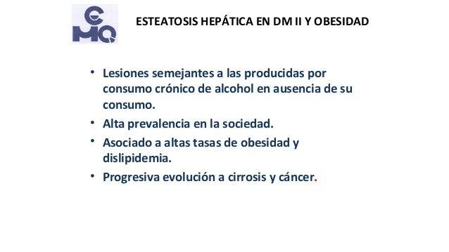 Esteatosis hepática en obesidad y diabetes tipo 2