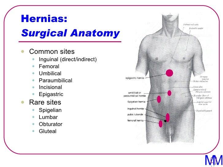 Inguinal Hernia Surgical Anatomy Gallery Human Body Anatomy