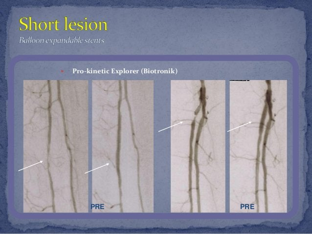 Michael Knizhnik — Endovascular treatment for patients with critical limb ischemia: yesterday, today and tomorrow