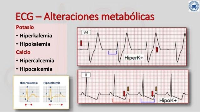 HIPOPOTASEMIA ELECTROCARDIOGRAMA PDF DOWNLOAD