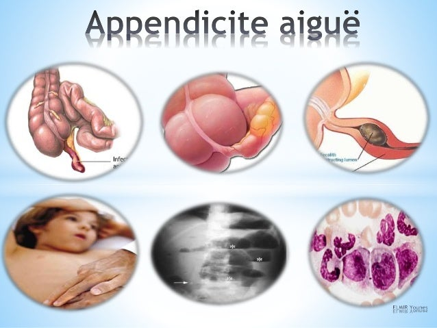 PLAN *I-DEFINITION EMBRYOLOGIE ANATOMIE *II-Aspects anatomo-pathologiques *III- PHYSIOPATHOLOGIE *IV- EPIDEMIOLOGIE *V- EX...