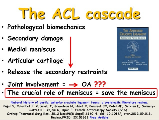 """a discussion on the nature of the anterior crucial ligament acl injury On anterior cruciate ligament (acl) injury, how to determine which individuals   was based on the terms """"anterior cruciate ligament  and are specifically  discussed below  m the natural history of untreated anterior cruci- ate tears  in."""