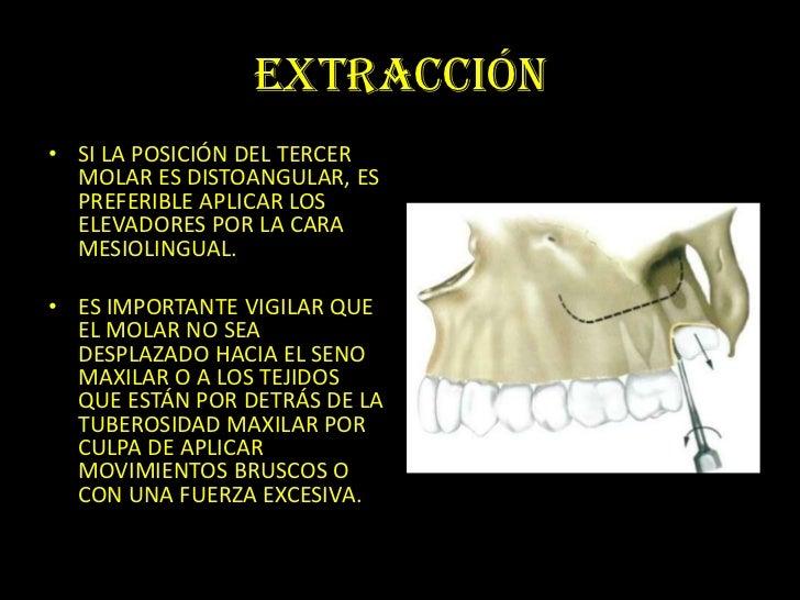 cirugia de terceros molares