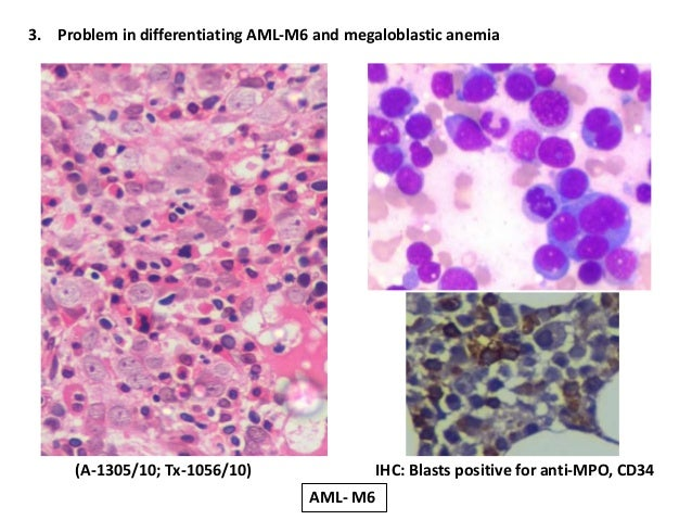 common pitfalls in bone marrow biopsy based diagnostic approach, Skeleton