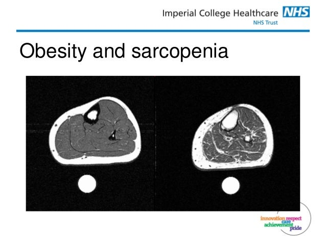 Introduction To Sarcopenia And Frailty