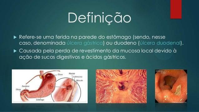 Úlceras Pépticas Slide 2