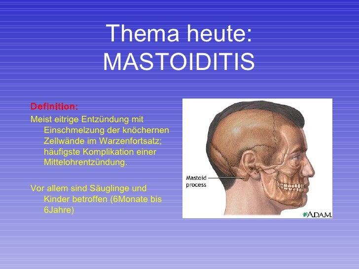 Thema heute: MASTOIDITIS <ul><li>Definition: </li></ul><ul><li>Meist eitrige Entzündung mit Einschmelzung der knöchernen Z...
