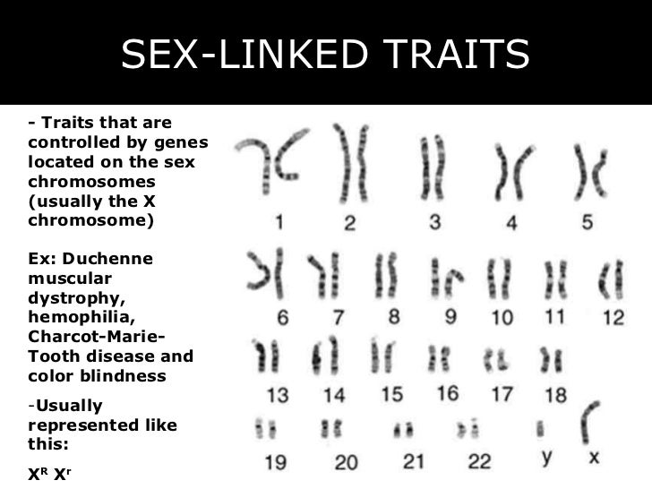 An example of a sex linked trait