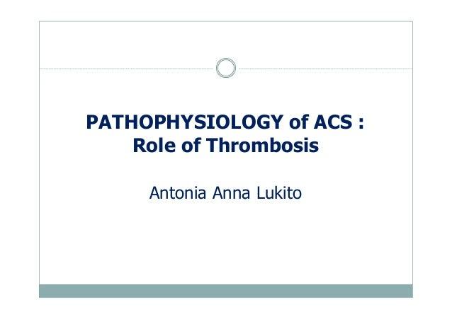 PATHOPHYSIOLOGY of ACS : Role of Thrombosis Antonia Anna Lukito
