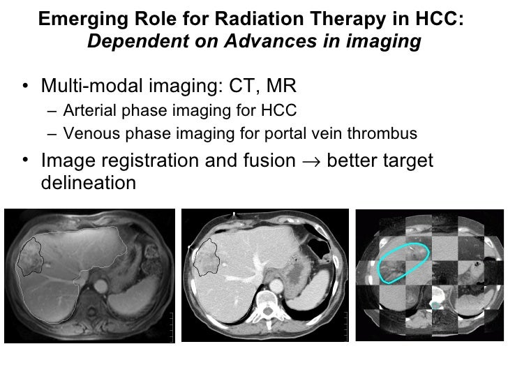 Emerging Role for Radiation Therapy in HCC:  Dependent on Advances in imaging <ul><li>Multi-modal imaging: CT, MR </li></u...