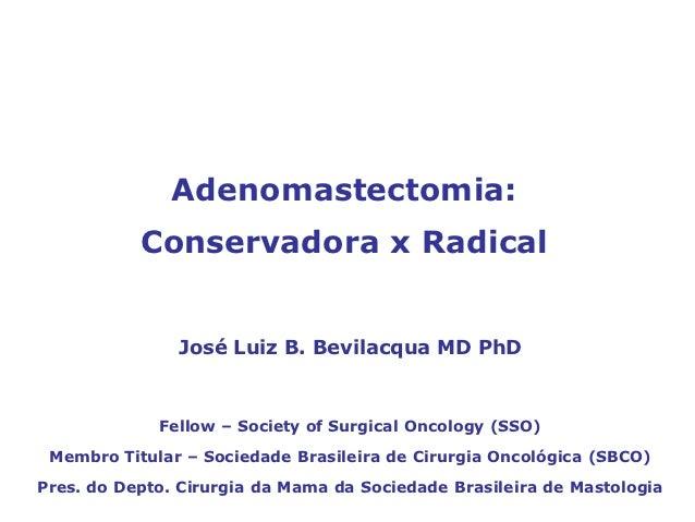 Adenomastectomia:           Conservadora x Radical               José Luiz B. Bevilacqua MD PhD             Fellow – Socie...
