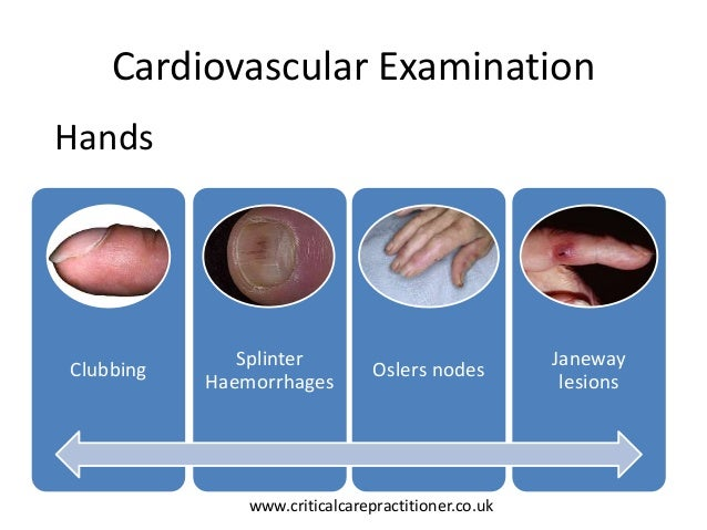 cardiovascular assessment Week 5 test 2 jarvis pages 467-470 learn with flashcards, games, and more — for free.