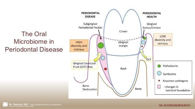 Your Autoimmunity Connection Doi: 10.1016/j.imlet.2014.08.017 The Oral Microbiome in Periodontal Disease