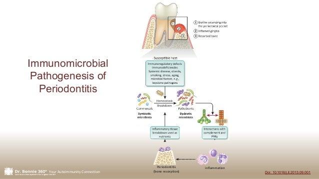 Your Autoimmunity Connection Doi: 10.1016/j.it.2013.09.001 Periodontitis (bone resorption) inflammation Immunomicrobial Pa...