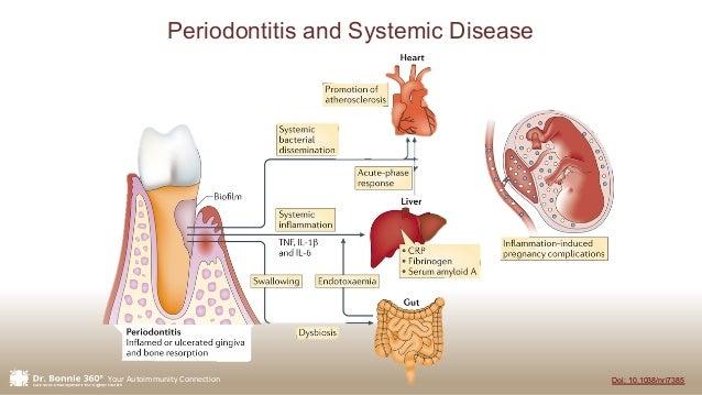 Your Autoimmunity Connection Doi: 10.1038/nri7385 Periodontitis and Systemic Disease