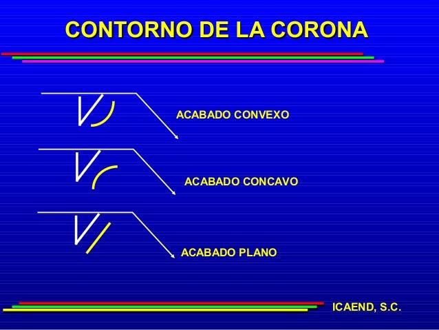 CONTORNO DE LA CORONA       ACABADO CONVEXO        ACABADO CONCAVO       ACABADO PLANO                          ICAEND, S.C.