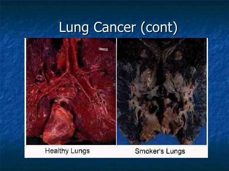 the smoking related diseases the deadly tobacco Some of the facts and statistics about cigarette smoking may surprise  smoking and tobacco use:  read stories of smokers who suffered from smoking-related diseases.