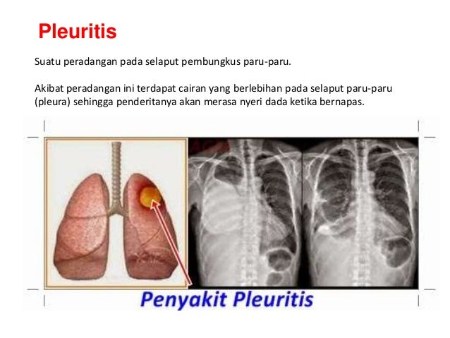 33+ Radang pada selaput pembungkus paru paru disebut inspirations