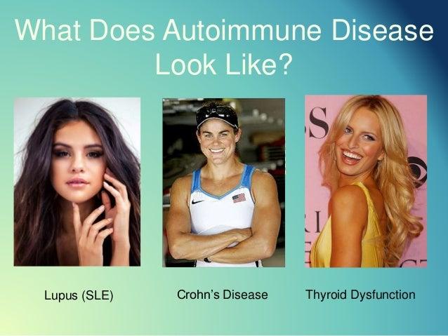 What Does Autoimmune Disease Look Like? Crohn's DiseaseLupus (SLE) Thyroid Dysfunction