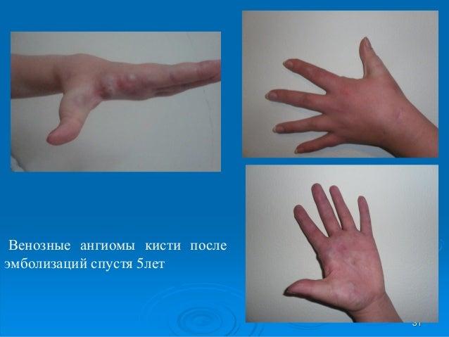 Мусагалиев Д. Т. — Результаты эндоваскулярных хирургических вмешатель…