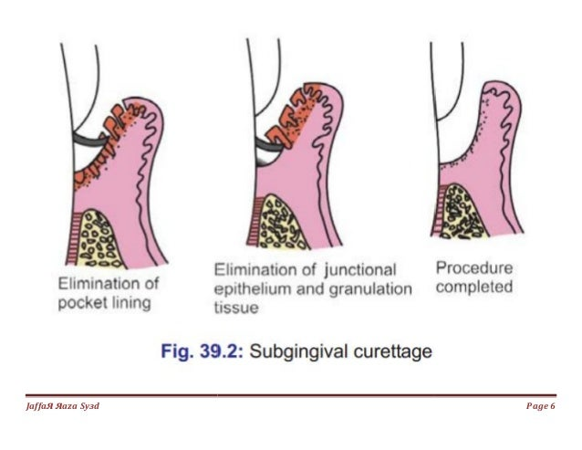 033.gingival curettage