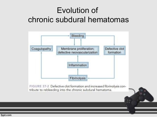 037 Pathophysiology Of Subdural Hematoma