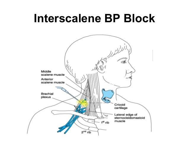 shoulder injection site steroids
