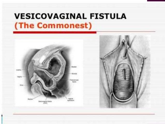 03 Genital Fistula Isam