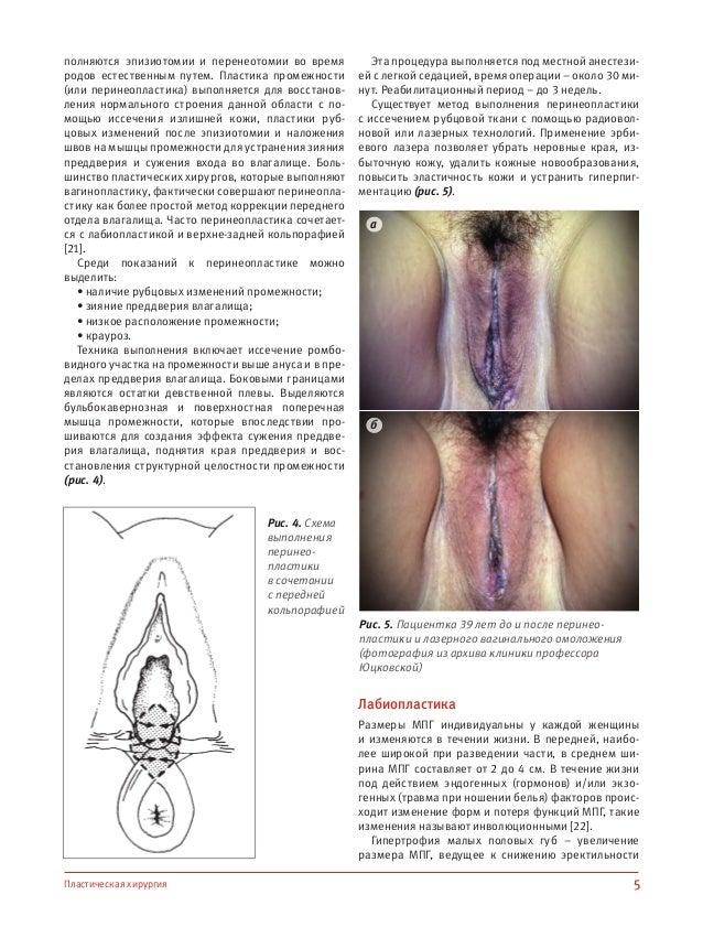 Наука о боли ( 2)